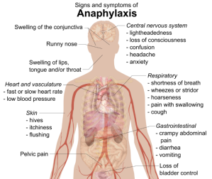 Diagram-Anaphylaxis-symptoms