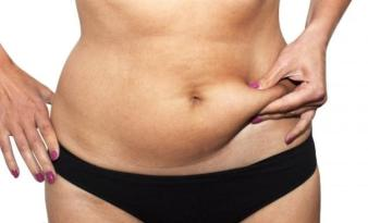 belly-fat-woman